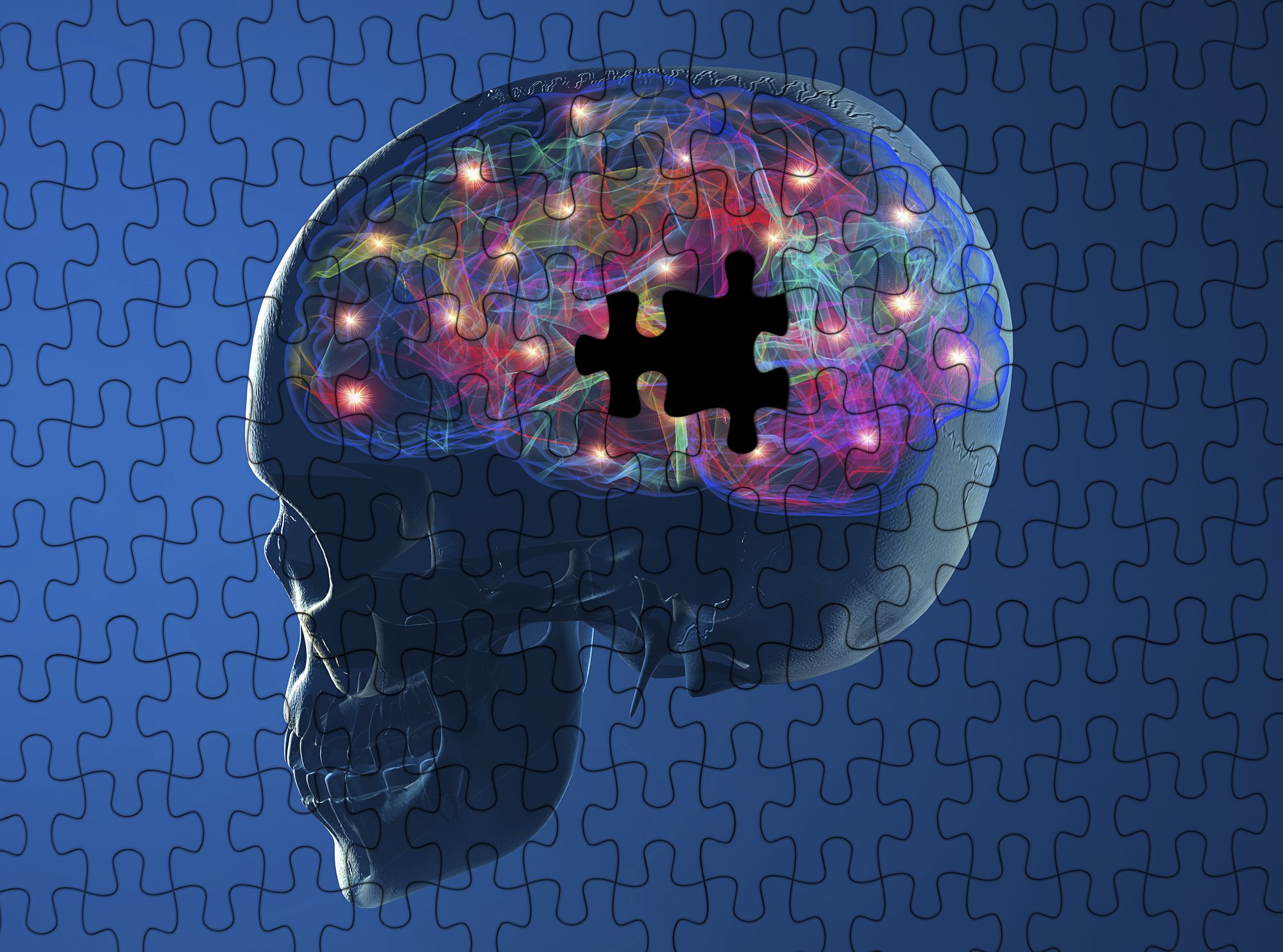 Addiction and the Brain: Areas of the Brain Affected by Addiction